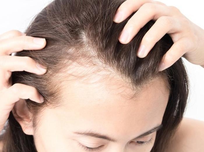nguyên nhân tóc rung nhiều